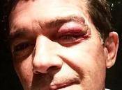 quedó cara Antonio Banderas luego sufrir accidente (FOTO)