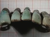 Encuentran dentadura siglos antiguedad hechas dientes verdaderos
