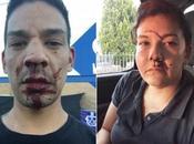 Jóvenes defienden lugar para discapacitados fueron golpeados