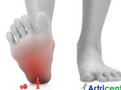 Fibromialgia dolor pies