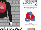 Dextrocardia: síndrome corazón revés.