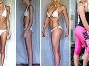 Impresionante: personas lograron superar anorexia