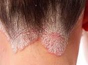 Como cuidar piel psoriasis