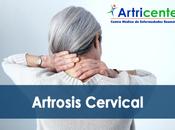 Síntomas Artrosis Cervical