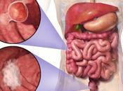 Cáncer colon (colorrectal): riesgos consejos prevención