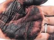 Arte piel