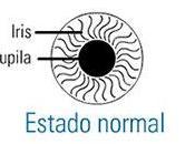 Pupilas dilatadas (midriasis)
