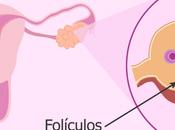 Diferencia entre Ovarios Poliquísticos