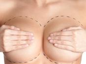 Cirugía Plástica: tener cuenta antes someterte cirugía