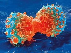 ¿Puede tumor tener tumor?