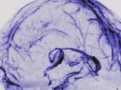 Nuestro cerebro puede eliminar desechos través vasos linfáticos