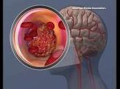 Cambio Paradigma Terapia Accidente Cerebrovascular