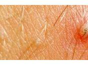 Opciones actuales tratamiento para acné vulgar