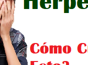 Curar Herpes Medicina Alternativa Remedios Naturales