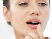 Herpes Labial Causas, Sintomas Remedios