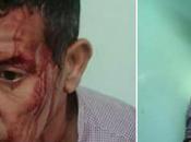 Saharaui atacado colonos marroquíes