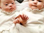 #Historias: Nacieron gemelas tiene Síndrome #Down #Medicina #Salud #Ciencias