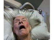 Antipsicóticos para tratamiento delirium pacientes hospitalizados UCI.