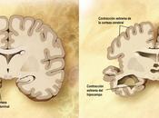 evidencia fármacos retrasen avance neurodegenerativo