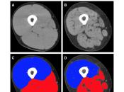 sarcopenia como predictor hospitalización entre personas mayores: revisión sistemática metaanálisis.
