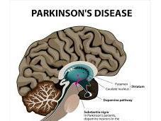 Terapia Genética elimina Enfermedad Parkinson