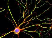 ¿Cuál neurona larga cuerpo?