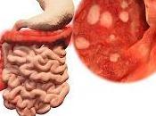 Recomendaciones Actualizadas para manejo Colitis Ulcerosa