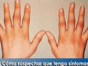 Artricenter: ¿Cómo sospechar tengo síntomas articulares artritis reumatoide?