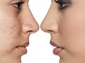 novedades tratamiento acne: futuro esta aquí