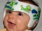 niños plagiocefalia deformativa muestran riesgo padecer retraso desarrollo