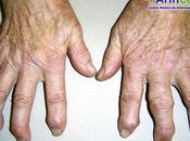 Artrosis articulaciones metacarpofalángicas