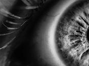 relación entre colesterol ojos.