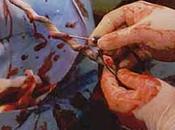 Vitamina sangre cordón bronquiolitis virus sincicial respiratorio
