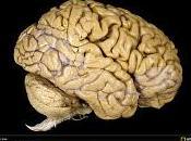 Euskadi donación cerebros través Biobanco Vasco