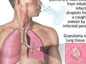 Campaña Mundial contra Tuberculosis