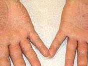 Investigadores demuestran hasta para peores casos Eczema Crónico Manos ahora existe solución