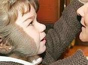 historia Aurora, niña gijonesa sufre nevus